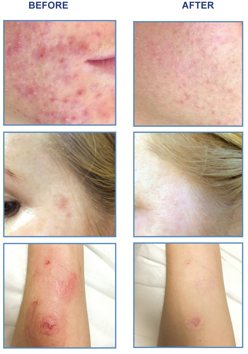 Dermal needling before and afters